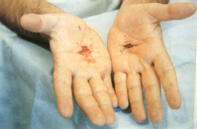 2 settembre 1989 Giorgio di ritorno da Fatima con le stimmate nelle palme delle mani