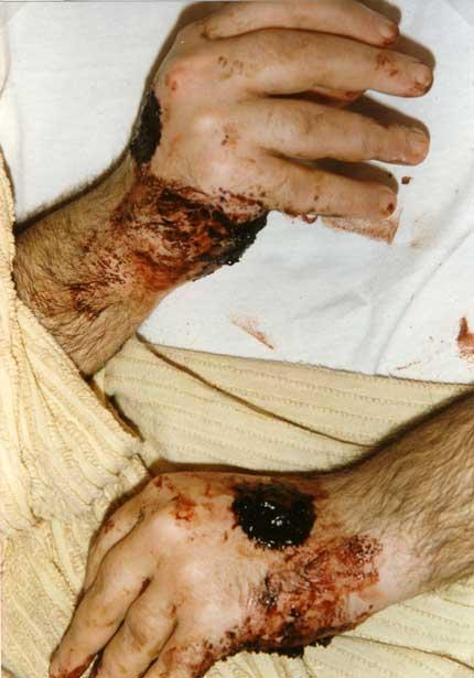 Porto S.Elpidio anno 1990 durante la quotidiana sanguinazione dalle stimmate.