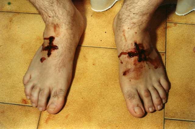 Porto S.Elpidio 2 Settembre 1991 Giorgio Bongiovanni riceve le Stimmate ai piedi a forma di due croci sanguinanti.