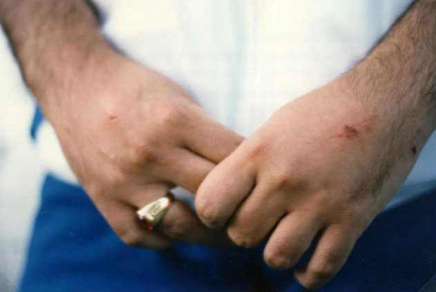 3 settembre 1989 La stimmatizzazione si completa, i fori appaiono anche sul dorso delle mani.
