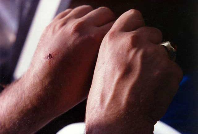 3 settembre 1989 un particolare della stimmatizzazione nei dorsi delle mani.