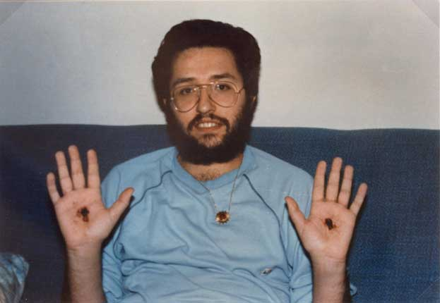 Ottobre 1989 le stimmate nelle palme delle mani un mese dopo la loro comparsa.