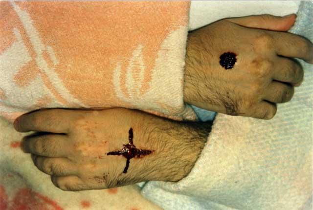 Porto S.Elpidio 7 Febbraio 1990 durante una sanguinazione si forma una croce sulla mano sinistra.